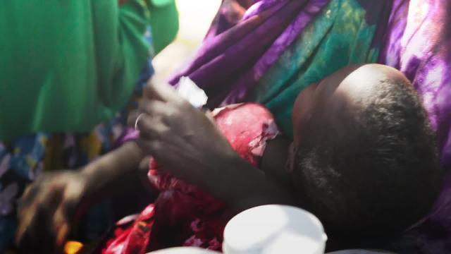 Meet Hamda, who is wondering how she will feed her family as Somalia's famine crisis worsens.