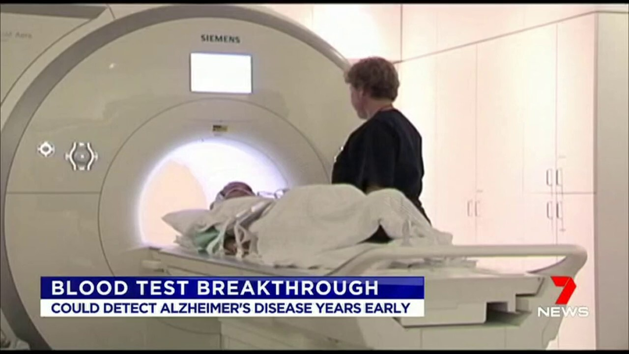 The new test could detect Alzheimer's disease years early.