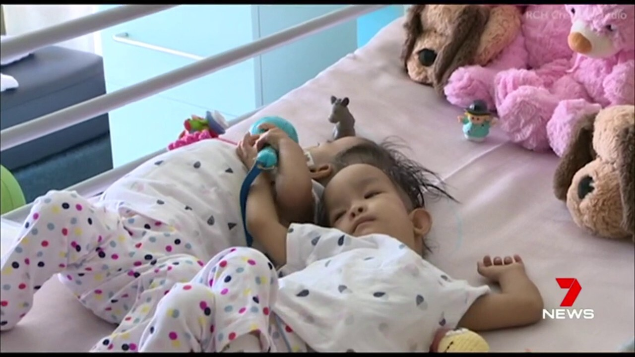 Former conjoined twins recovering strongly in Melbourne following successful surgery.