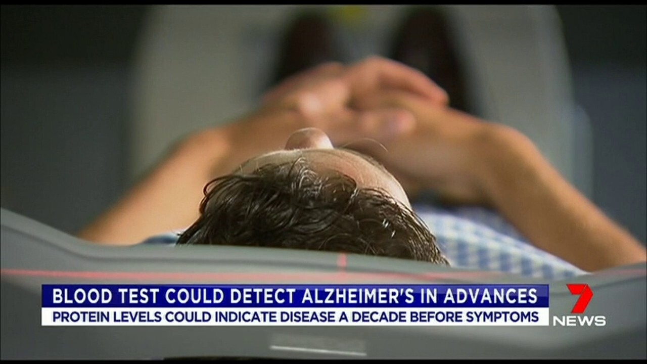 Changes in levels of a blood protein could indicate the potential of developing Alzheimer's.
