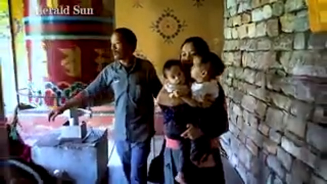 Conjoined twins Bhutan: Royal Children's Hospital attempt to