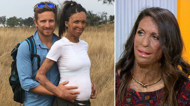 Turia Pitt Welcomes Baby Boy